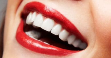 ارتودنسی دندان ها